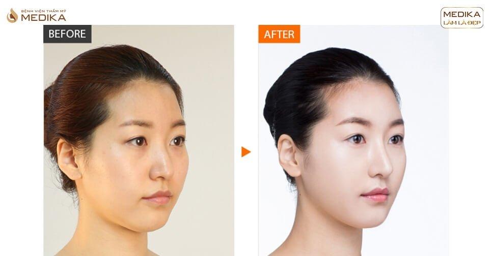 Tại sao nâng mũi cấu trúc hấp dẫn nhiều người ở Nangmuicautrucdep.com?