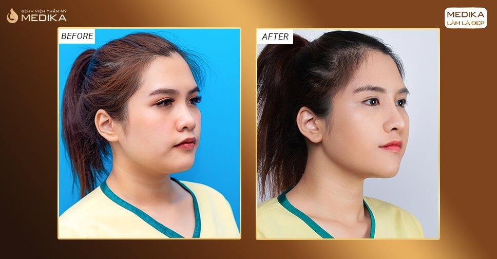 Nâng mũi 3D s line có thay đổi đường nét gương mặt? - Ở Nangmuicautrucdep.com
