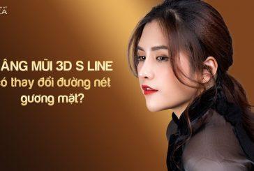 Nâng mũi 3D s line có thay đổi đường nét gương mặt?