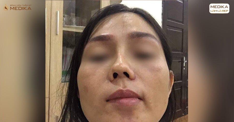 Nâng mũi bọc sụn giá rẻ và cái kết không lường ở Nangmuicautrucdep.com