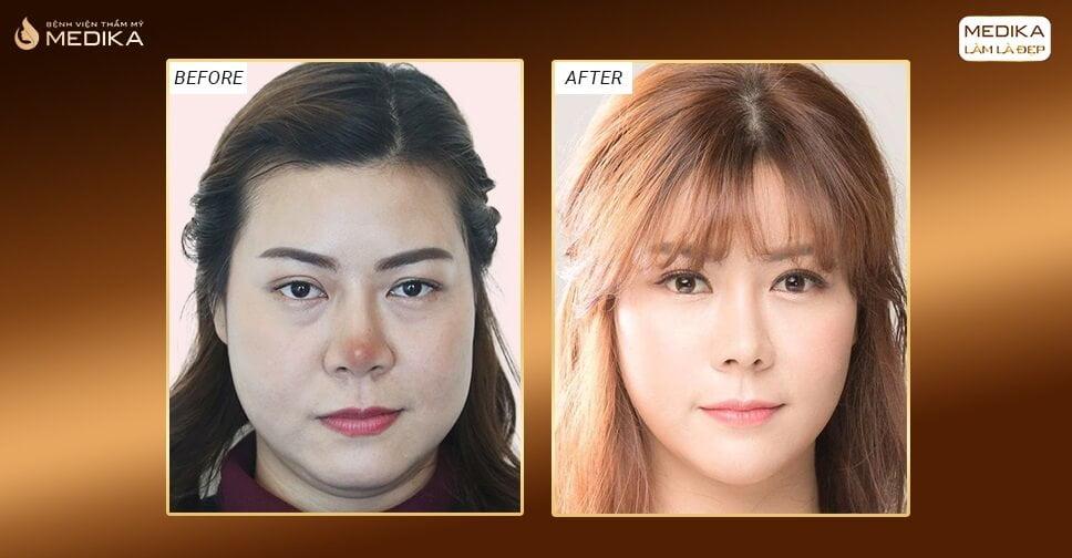 Những dấu hiệu sau nâng mũi sụn tự thân báo hiệu biến chứng ở Nangmuicautrucdep.com