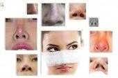 Những dấu hiệu sau nâng mũi sụn tự thân báo hiệu biến chứng