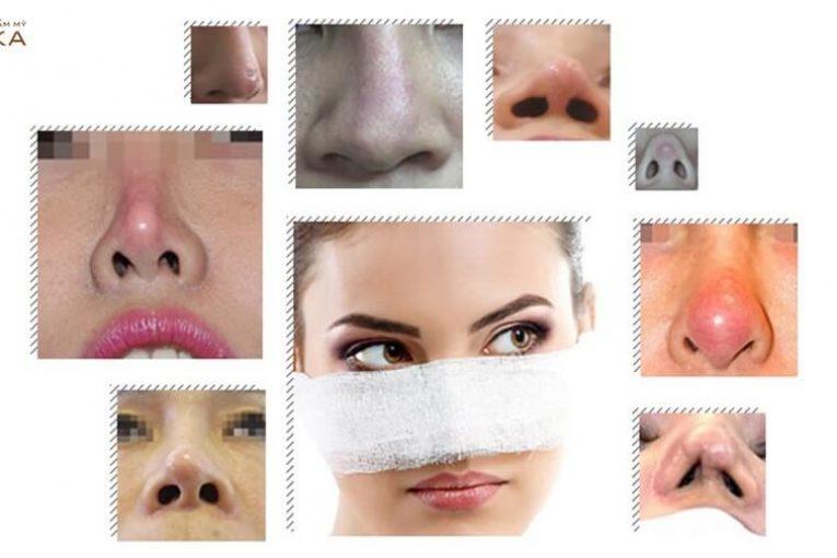 Những dấu hiệu sau nâng mũi sụn tự thân báo hiệu biến chứng tại Nangmuicautrucdep.com