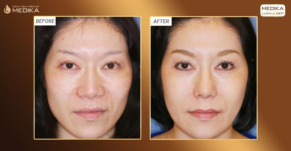 Thu gọn cánh mũi và những điều chuyên gia chia sẻ ở Nangmuicautrucdep.com