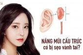 Nâng mũi cấu trúc có bị sẹo vành tai?