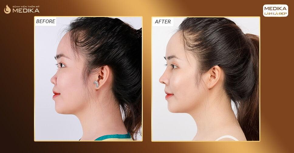 Những trường hợp nào sẽ được chỉ định nâng mũi cấu trúc bởi Nangmuicautrucdep.com