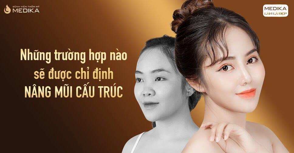 Những trường hợp nào sẽ được chỉ định nâng mũi cấu trúc từ Nangmuicautrucdep.com