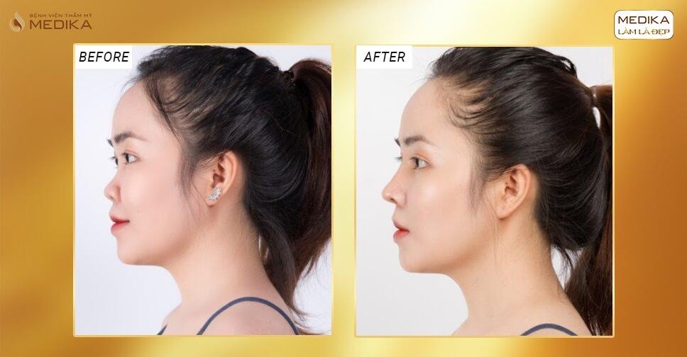 Phẫu thuật nâng mũi cấu trúc đẹp tại bệnh viện thẩm mỹ MEDIKA bởi Nangmuicautrucdep.com