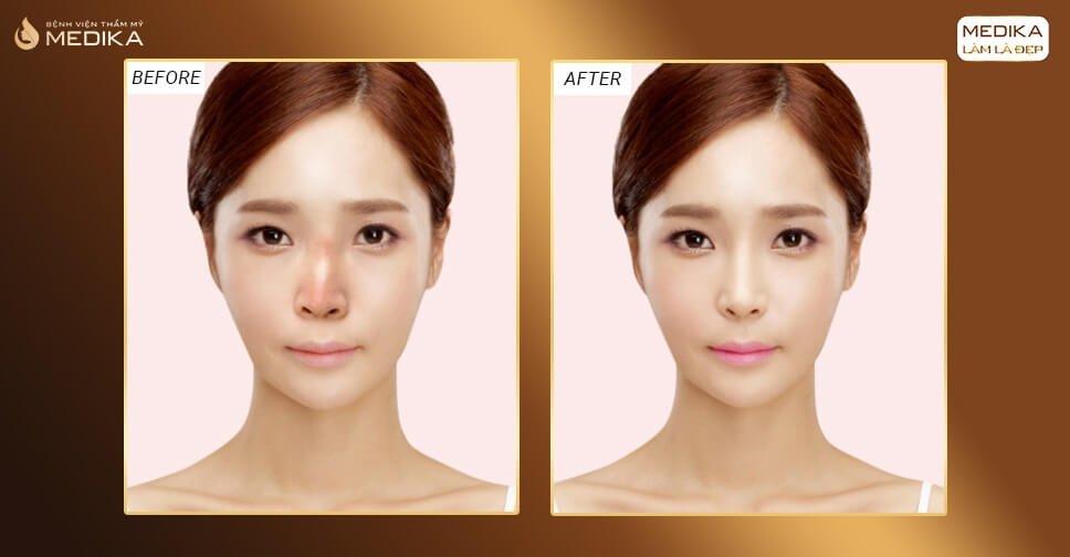 Cô gái trẻ suýt mất mũi vì tin tưởng nâng mũi bọc sụn tại Spa bởi Nangmuicautrucdep.com