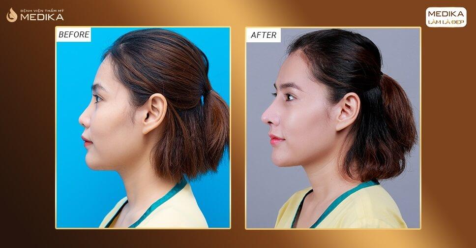 Kinh nghiệm xương máu khi nâng mũi sụn nhân tạo bởi Nangmuicautrucdep.com