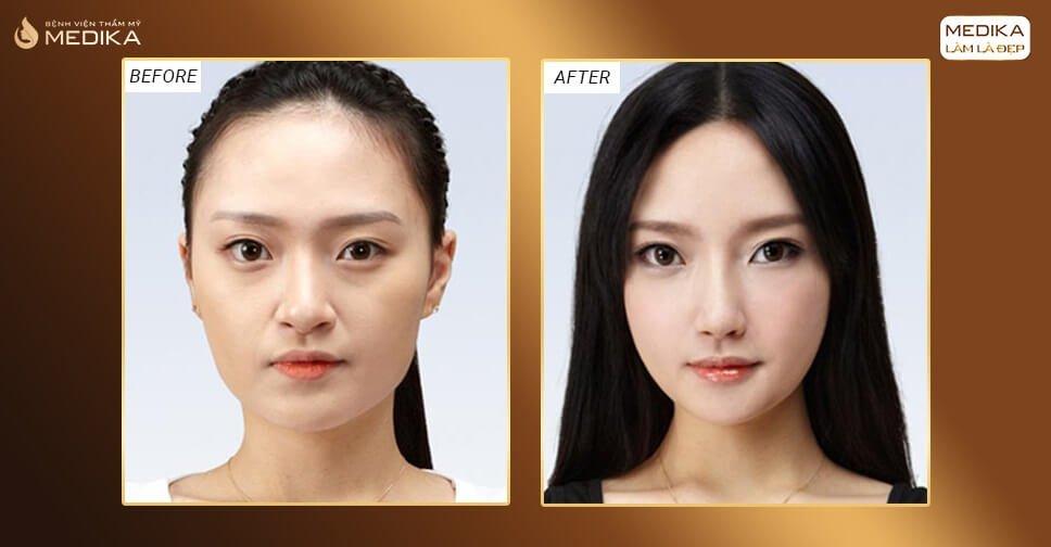 Thu nhỏ đầu mũi có giúp mũi cao lên bởi Nangmuicautrucdep.com?