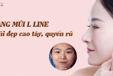 Bật mí những thắc mắc về nâng mũi L line