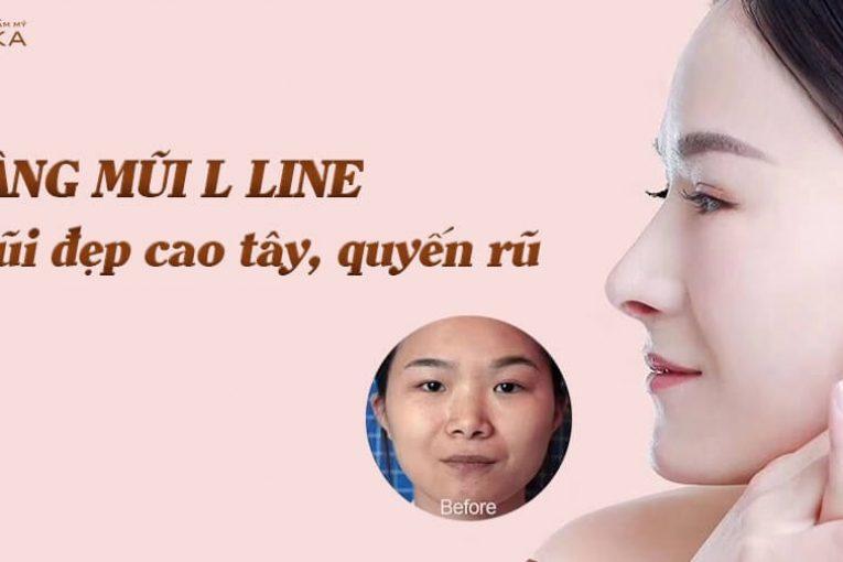Bật mí những thắc mắc về nâng mũi L line từ Nangmuicautrucdep.com