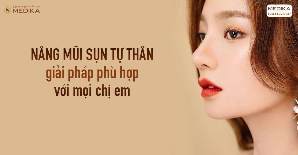 Nâng mũi sụn tự thân - Giải pháp phù hợp với mọi chị em từ Nangmuicautrucdep.com