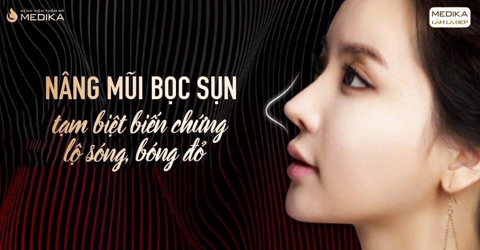 Nên nâng mũi bọc sụn gì thì tốt từ Nangmuicautrucdep.com?