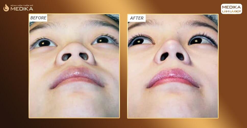 Thu gọn cánh mũi có gây ảnh hưởng đến sức khỏe bởi Nangmuicautrucdep.com?