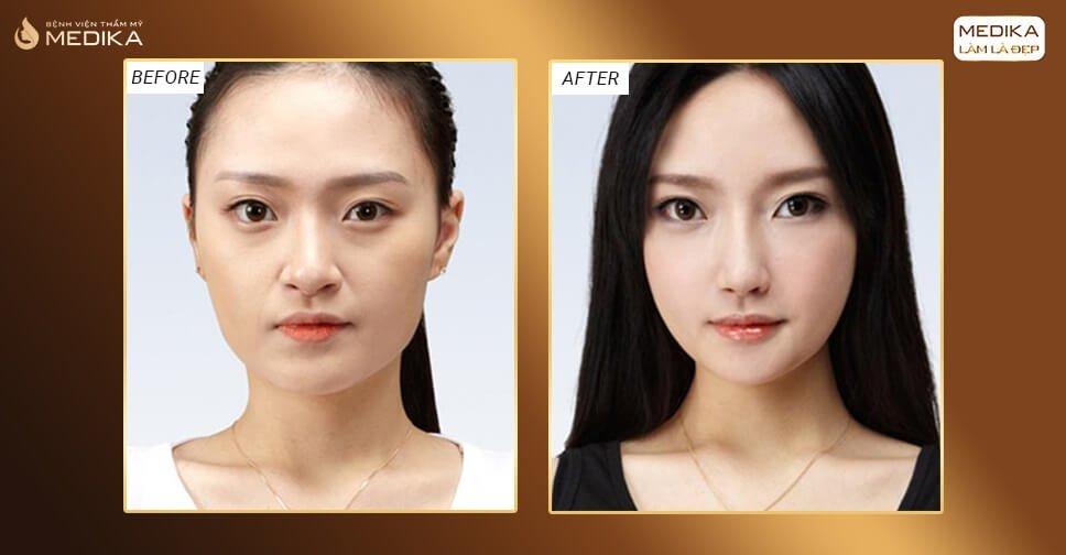 Thực hiện thu nhỏ đầu mũi và cánh mũi cùng lúc được không bởi Nangmuicautrucdep.com?