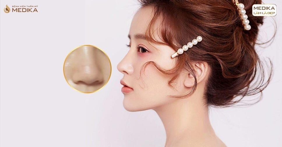 Thực hiện thu nhỏ đầu mũi và cánh mũi cùng lúc được không từ Nangmuicautrucdep.com?