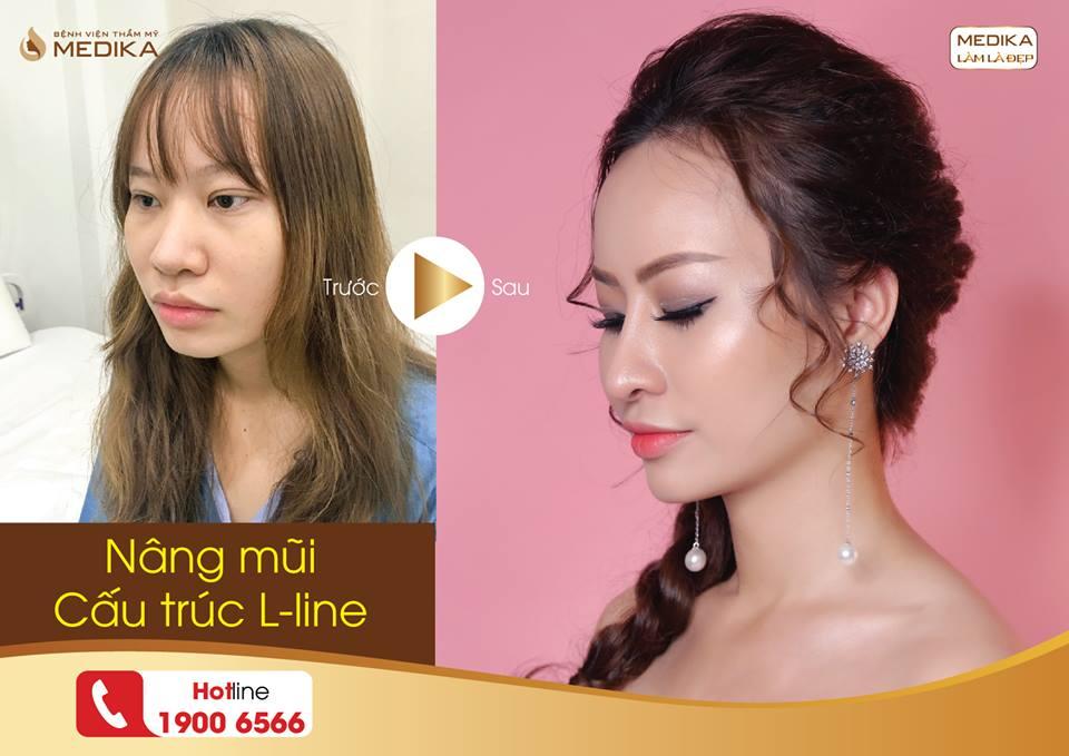 Bí quyết sở hữu dáng mũi sang chảnh khi nâng mũi L line từ Nangmuicautrucdep.com