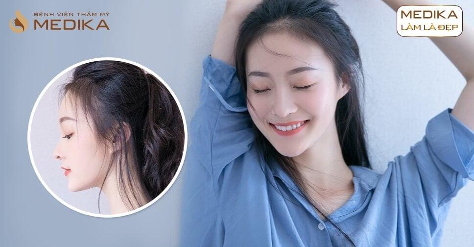Nâng mũi Hàn Quốc có bị kéo mắt ảnh hưởng thẩm mỹ hay không từ Nangmuicautrucdep.com?