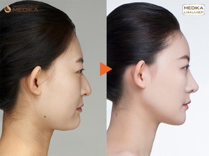 Những điều cần chuẩn bị trước khi nâng mũi sụn sườn bởi Nangmuicautrucdep.com