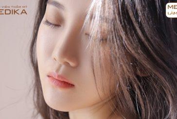 Những điều cần chuẩn bị trước khi nâng mũi sụn sườn
