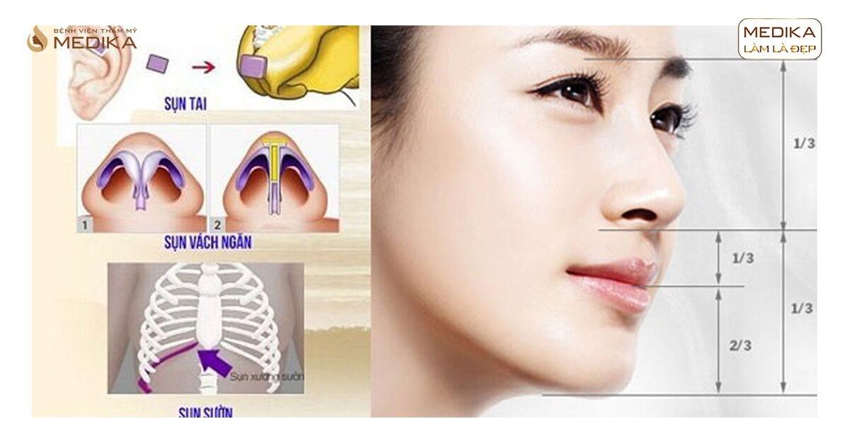 Cách chăm sóc sau nâng mũi nhanh hồi phục tại Nangmuicautrucdep.com