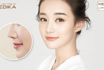 Đối tượng nào có thời gian hồi phục lâu hơn khi nâng mũi bọc sụn?