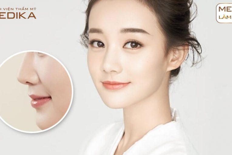Đối tượng nào có thời gian hồi phục lâu hơn khi nâng mũi bọc sụn từ Nangmuicautrucdep.com?
