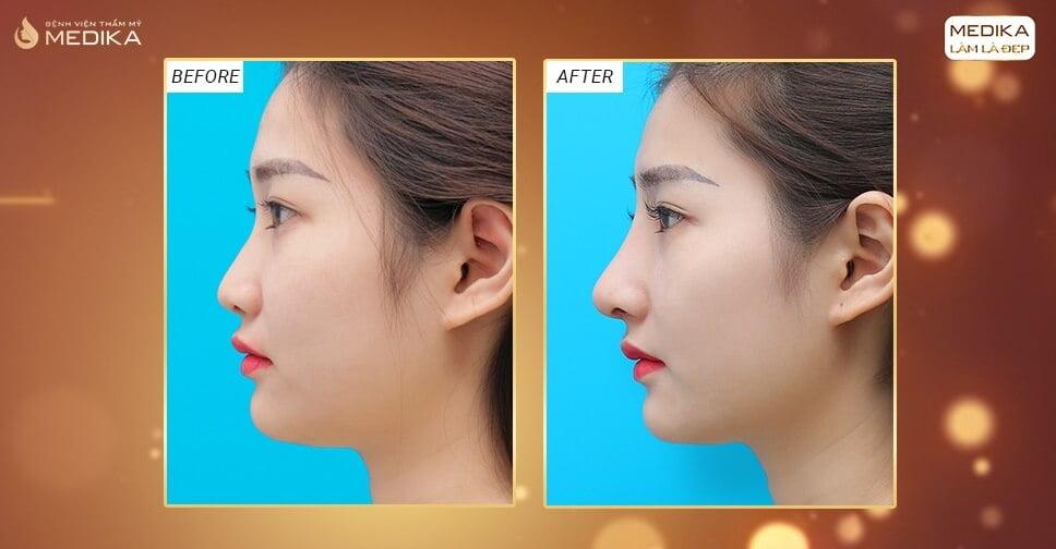 Nâng mũi sụn nhân tạo có để lại biến chứng như trước ở Nangmuicautrucdep.com?