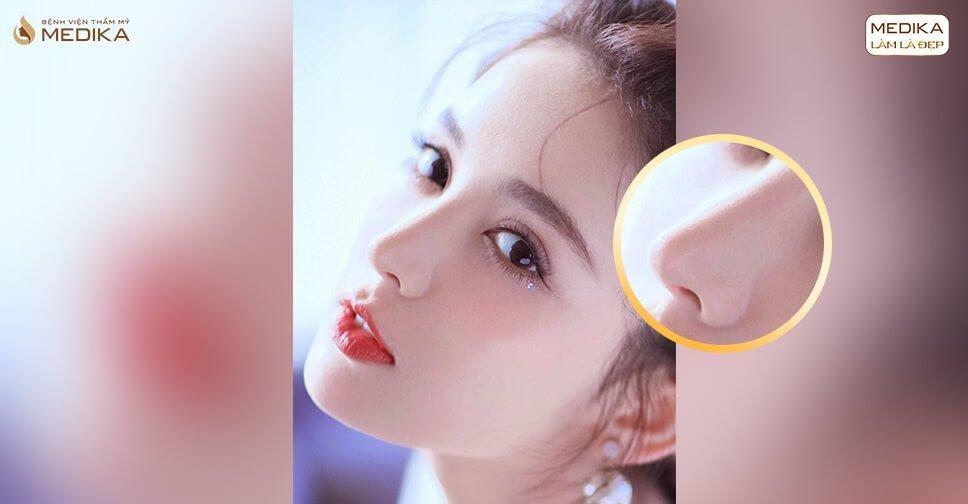 Nâng mũi sụn sườn có bị teo lại không ở Nangmuicautrucdep.com?