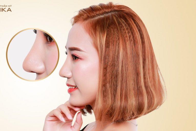 Những ai có thể thực hiện nâng mũi L line tại Nangmuicautrucdep.com