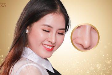 Nâng mũi bọc sụn giải pháp hoàn hảo cho chiếc mũi