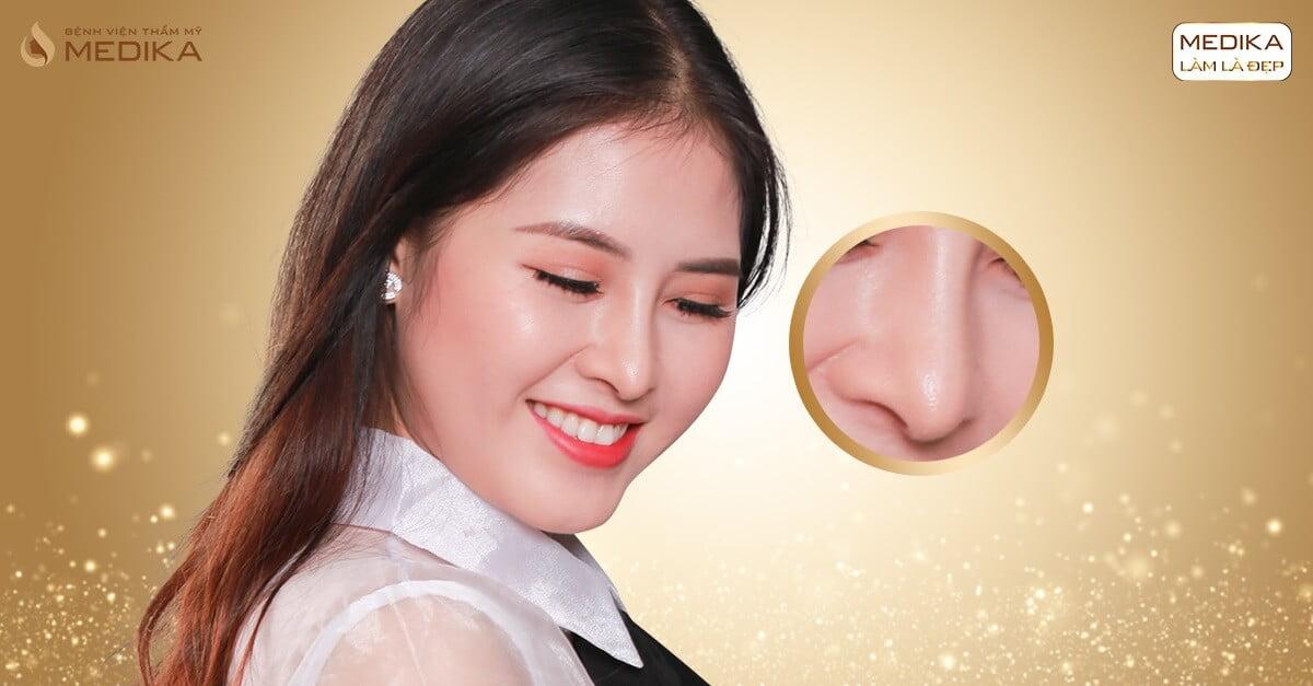 Nâng mũi bọc sụn giải pháp hoàn hảo cho chiếc mũi ở Nangmuicautrucdep.com