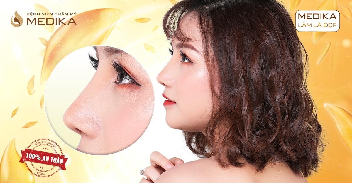 Nâng mũi bọc sụn giải pháp hoàn hảo cho chiếc mũi tại Nangmuicautrucdep.com