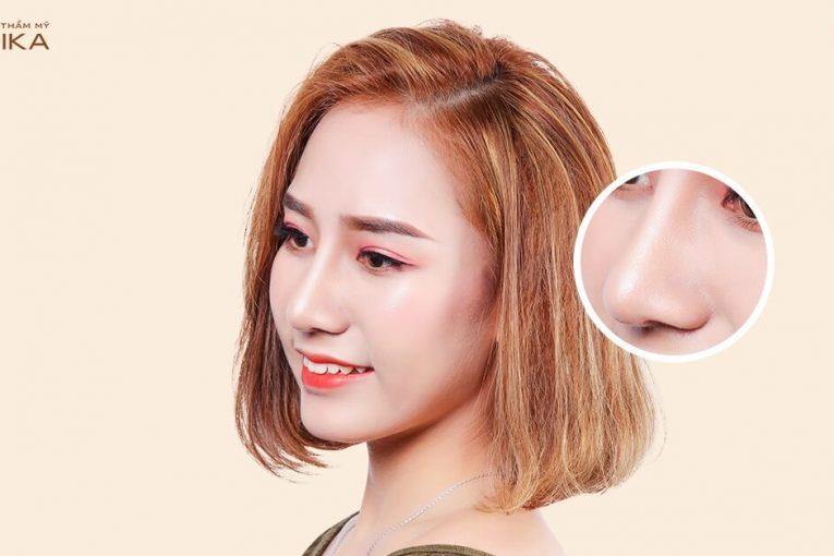 Nâng mũi L Line: Nên dùng sụn tự thân hay sụn hiến tặng ở Nangmuicautrucdep.com?