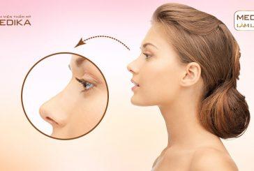 Nâng mũi S line có nguy cơ để lại biến chứng gì không?