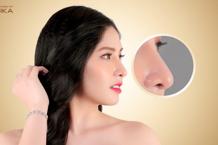 Những lầm tưởng tai hại về nâng mũi bọc sụn ở Nangmuicautrucdep.com