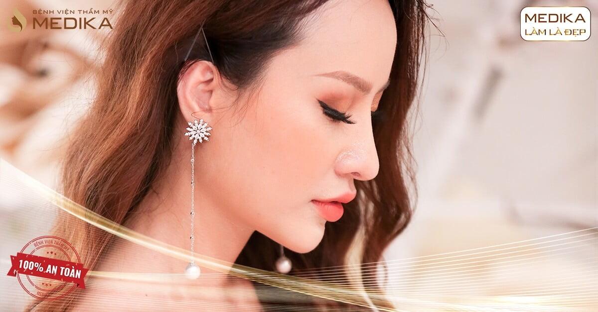 Nâng mũi xong đi làm bình thường hay cần kiêng cữ? - Ở Nangmuicautrucdep.com